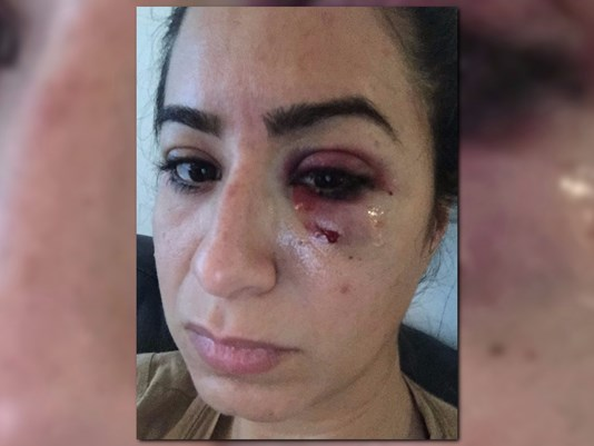 uber-driver-allegedly-punches-woman-in-the-face-in-atlanta-11alive-com